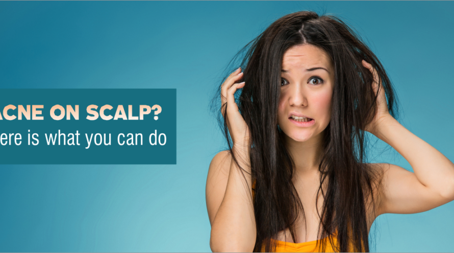 how-to-cure-acne-on-scalp